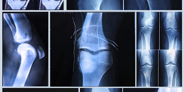Knee X-ray and MRI befor and after arthroscopic surgery for Anterior cruciate ligament injury