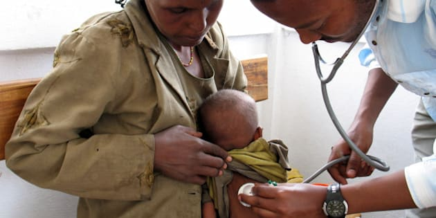 A doctor checks the heartbeat of a malnourished child at a clinic run by the medical charity Doctors Without Borders in Shashemene, Ethiopia, May 28, 2008. The U.N. Children's Fund has warned that 6 million Ethiopian children under the age of 5 require emergency feeding.  (Photo by Shashank Bengali/MCT/MCT via Getty Images)
