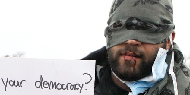 A hooded unidentified migrant from Iran demonstrates with his sewn lips, in an attempt to prevent the dismantling of makeshift dwellings at a camp near Calais, France, Wednesday March 2, 2016. More than a dozen humanitarian organizations on Tuesday accused authorities of brutally evicting migrants from their makeshift dwellings in a sprawling camp in northern France, as fiery protests of the demolition continued. (AP Photo/Michel Spingler)