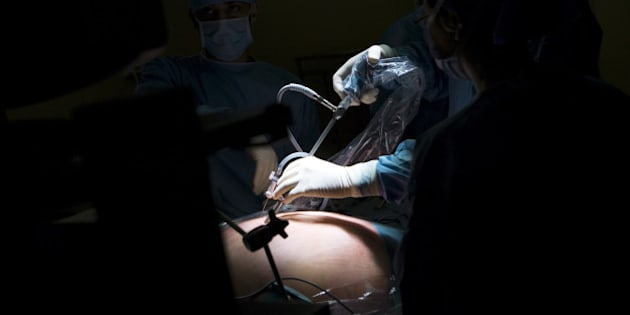 Photo Essay At The Hospital Of Meaux 77, France. Visceral And Digestive Surgery. Surgery Of Obesity Sleeve Gastrectomy Under Laparoscopy. (Photo By BSIP/UIG Via Getty Images)
