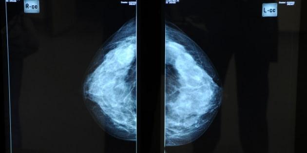 France, Pays de la Loire, Loire-Atlantique, Nantes, René Gauducheau cancer resarch centre, mammography