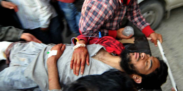 A Kashmiri youth is stretchered into a hospital in Srinagar on April 15, 2016, after sustaining injury in an alleged firing incident by security forces in Kupwara District of the restive Himalayan state.