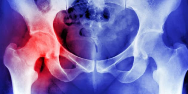 X-RAY SHOWING OSTEOPOROSIS HIP REPLACEMENT
