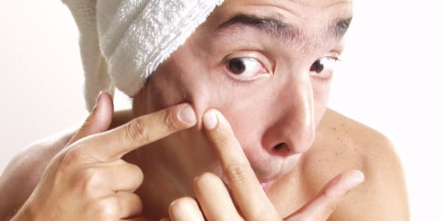 Pimple Popping Acne Blisters And Scabs 9 Things You Shouldn T