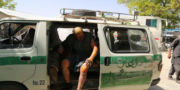 An injured man is seen in a vehicle after two buses and a fuel tanker collided on a major highway in the Ghazni province of Afghanistan on May 8, 2016.