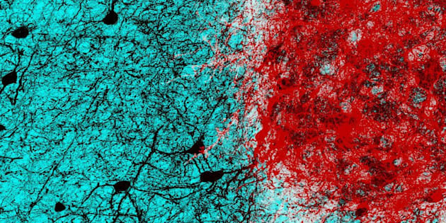 Embryonic neurons (shown in red) transplanted into the adult mouse brain connect with host neurons (shown in black), rebuilding neural circuits previously lost due toan injury.
