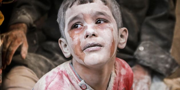 ALEPPO, SYRIA - OCTOBER 11: A wounded Syrian kid cries after the war-crafts belonging to the Russian army bombed the opposition controlled Firdevs neighborhood in Aleppo, Syria on October 11, 2016. (Photo by Jawad al Rifai/Anadolu Agency/Getty Images)