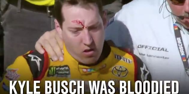 NASCAR driver Kyle Busch was left with a bloody gash on his forehead following a brawl at the Las Vegas Motor Speedway on Sunday.