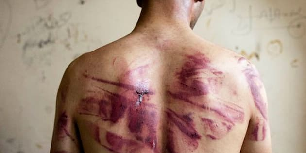 A Syrian man shows marks of torture on his back, after he was released from regime forces, in the Bustan Pasha neighbourhood of Syria's northern city of Aleppo on August 23, 2012. State media hailed the recapture by the army of three Christian neighbourhoods in the heart of Aleppo, but clashes between troops and rebel fighters raged in other parts of the city and in the southern belt of Damascus. AFP PHOTO / JAMES LAWLER DUGGAN        (Photo credit should read JAMES LAWLER DUGGAN/AFP/GettyImages)