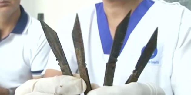 A doctor holds up four knives that are said to have been removed from a man's stomach in northern India.