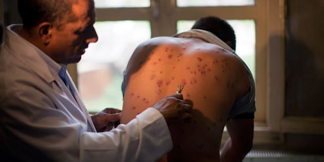 A Kashmiri doctor takes out the pellets from the body of a Kashmiri youth  on July 11, 2016 in Srinagar.