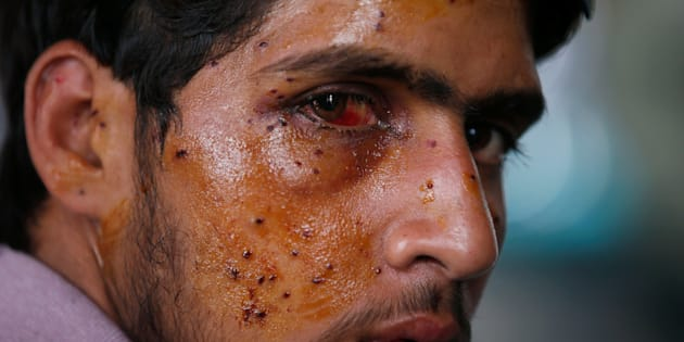 A man who got injured in the clashes between Indian police and protesters, sits inside a hospital, in Srinagar, July 14, 2016.