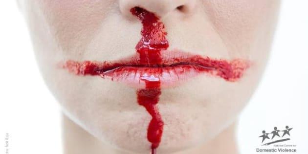 La imagen de la campaña es una boca y nariz sangrante que simula la bandera de Inglaterra.