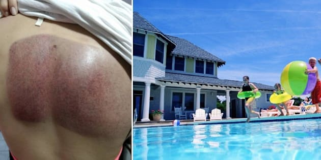 Mulher desabafa sobre acidente na piscina e faz alerta for X treme bombas piscinas