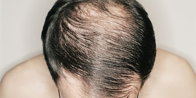 Does dying your hair make you go bald