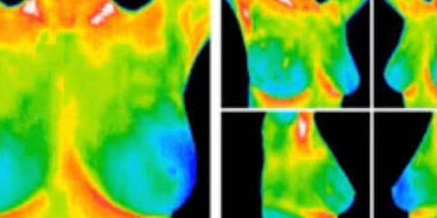 Breast thermography clinics