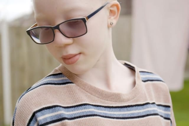 A British teenager with albinism is following her dreams of becoming a model