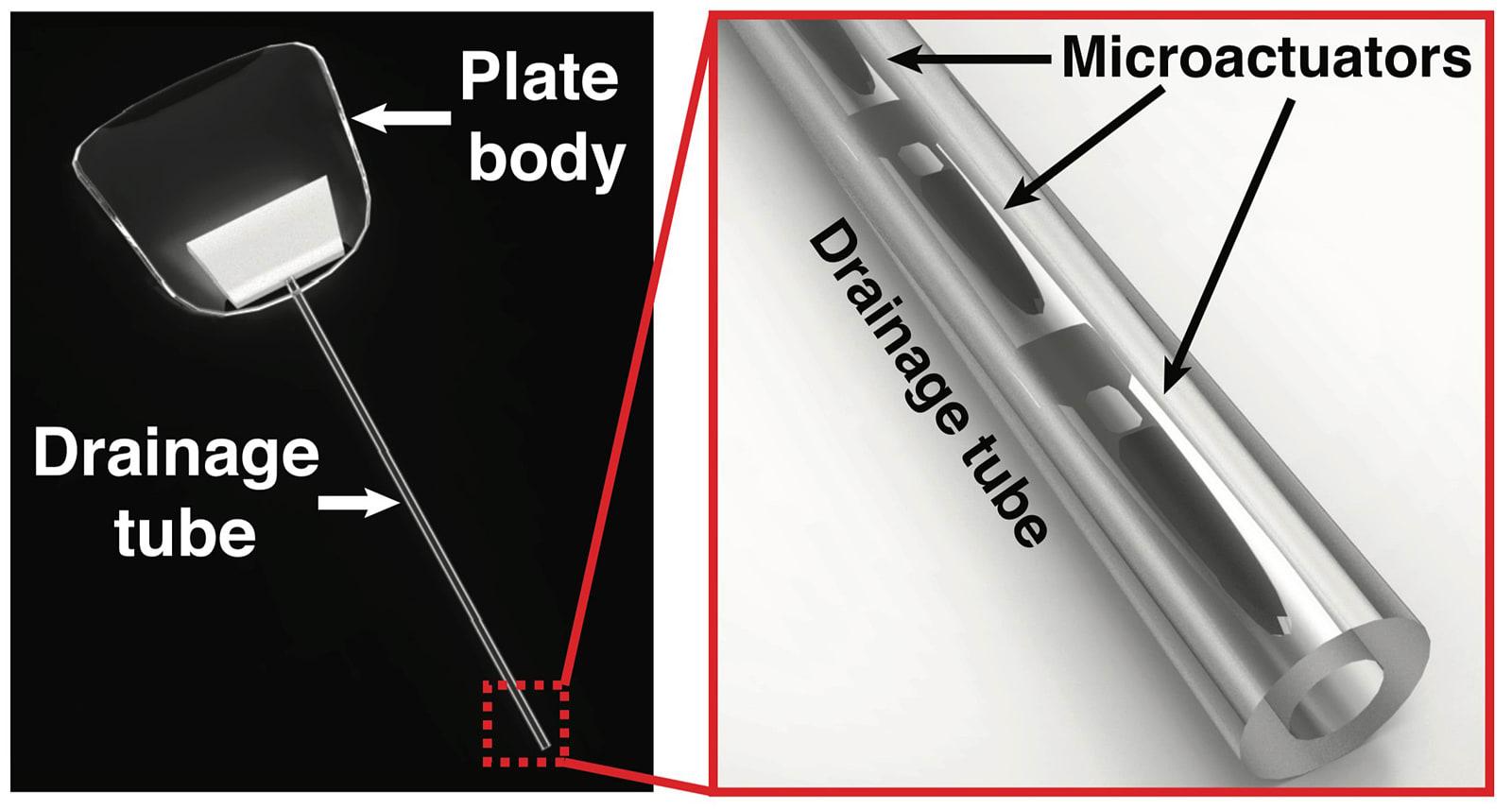 Purdue's magnetic field eye implant