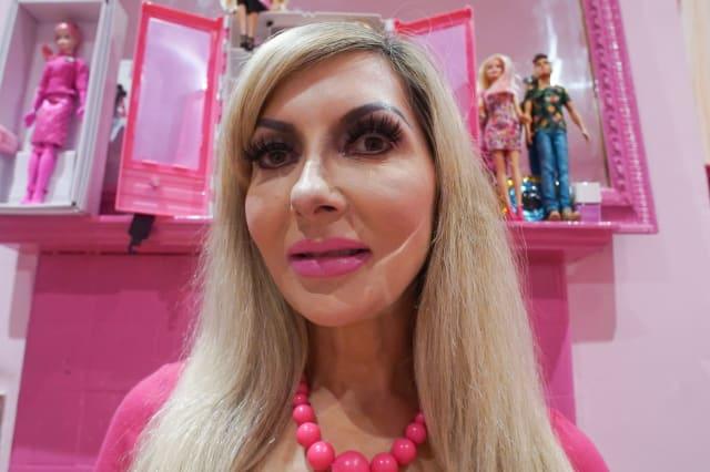 Ive Had 100 Surgeries To Look Like Barbie