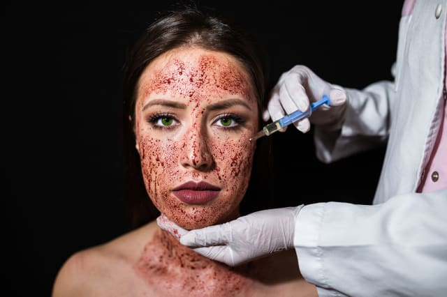 Young woman having a blood facial treatment at the beauty salon