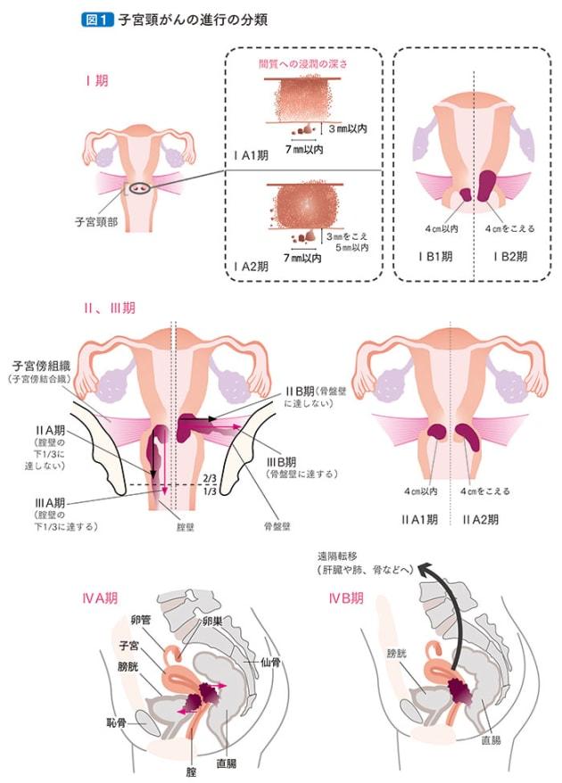 患者さんとご家族のための子宮頸がん 子宮体がん 卵巣がん 治療ガイドライン 第2版 日本婦人科腫瘍学会編集 (金原出版株式会社)