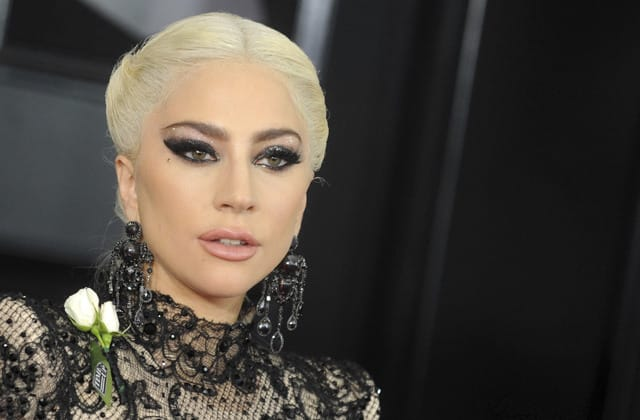 Lady Gaga speaks out after brutal dognapping