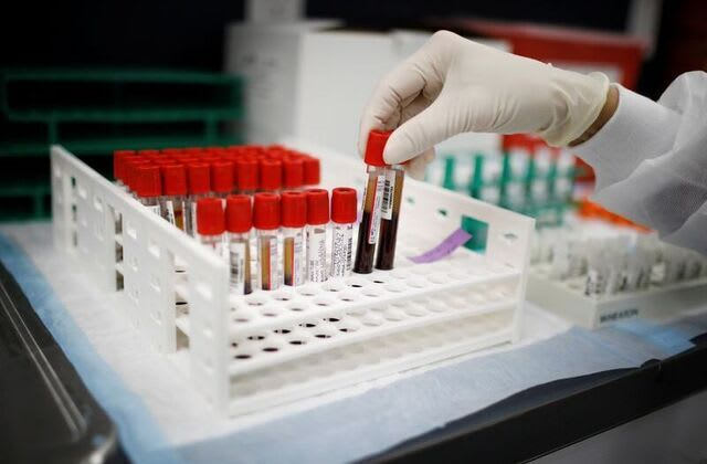 U.S. trial of COVID-19 blood plasma halted after no benefit found
