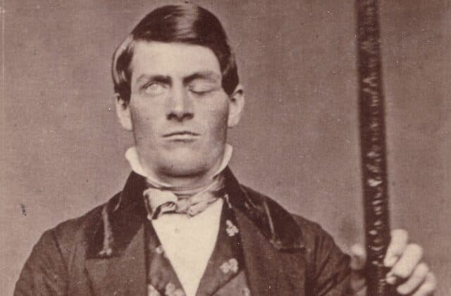 Why the case of Phineas Gage still baffles experts