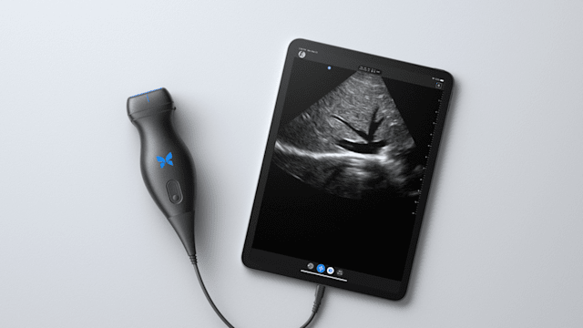 Butterfly Network ultrasound teleguidance