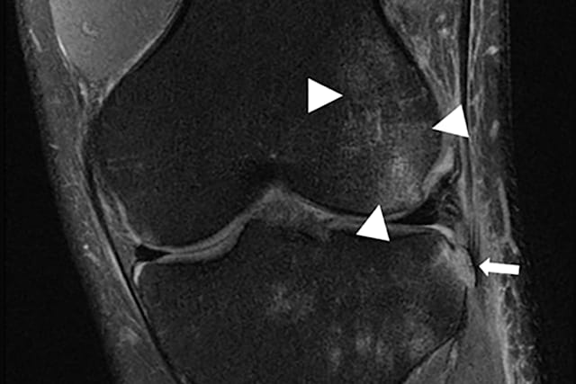 the triangles are pointing towards a hematoma and the arrow is noting a bone fracture.