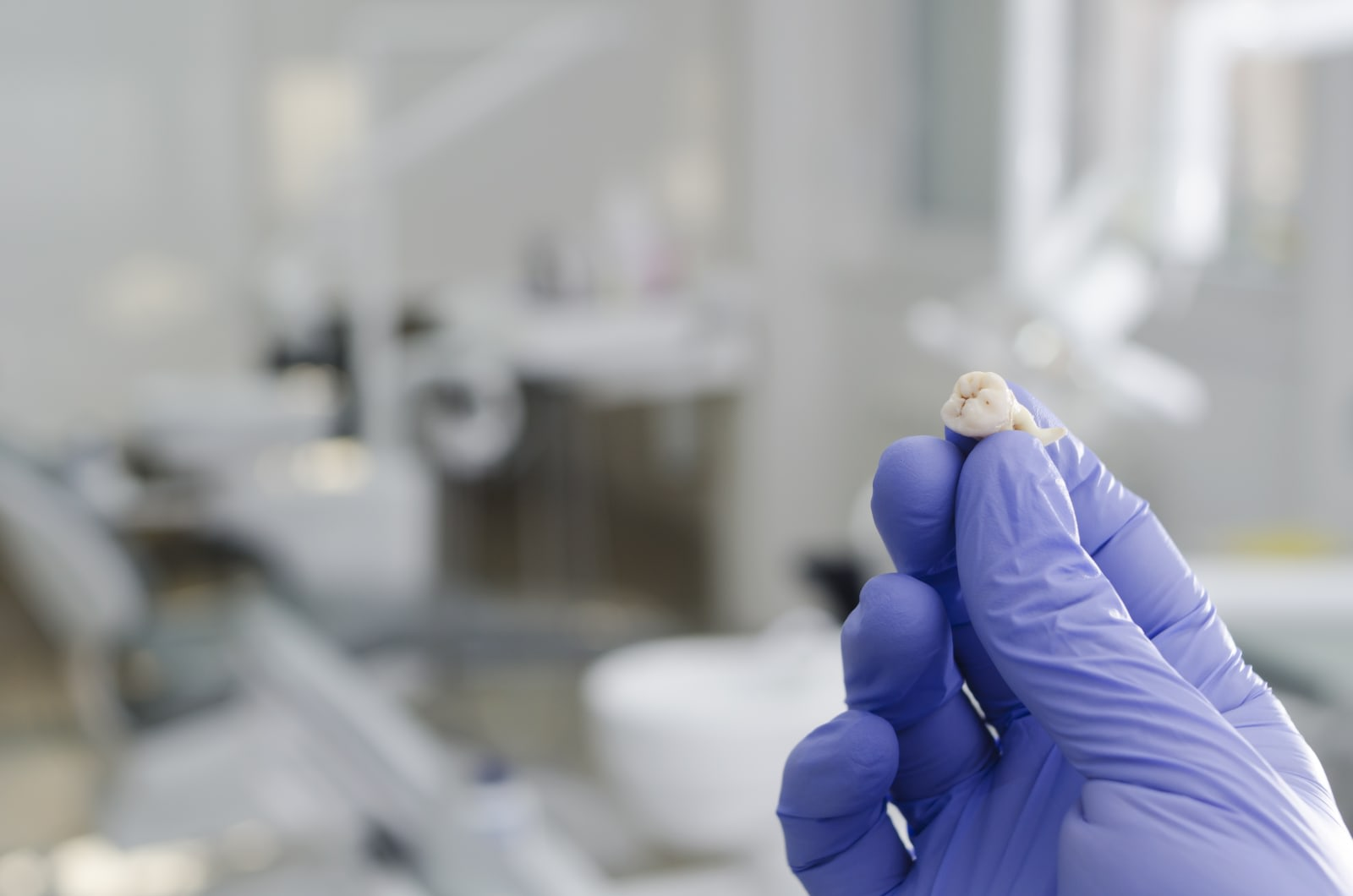 Scientists create tooth cracker device to harvest stem cells