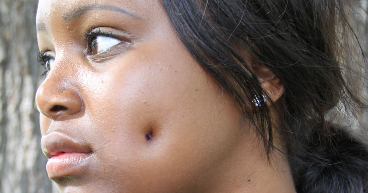 Dimpleplasty Woman Gets 163 1 500 Cheek Piercing Surgery To