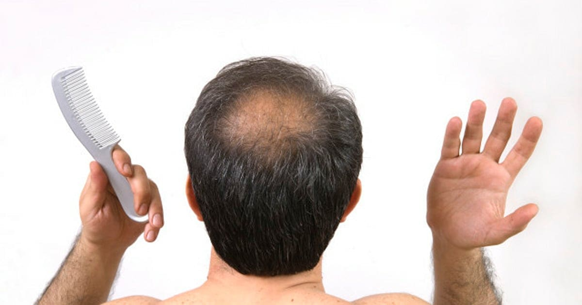 Dont Be Fooled By These Four Hair Loss Treatments Huffpost Canada