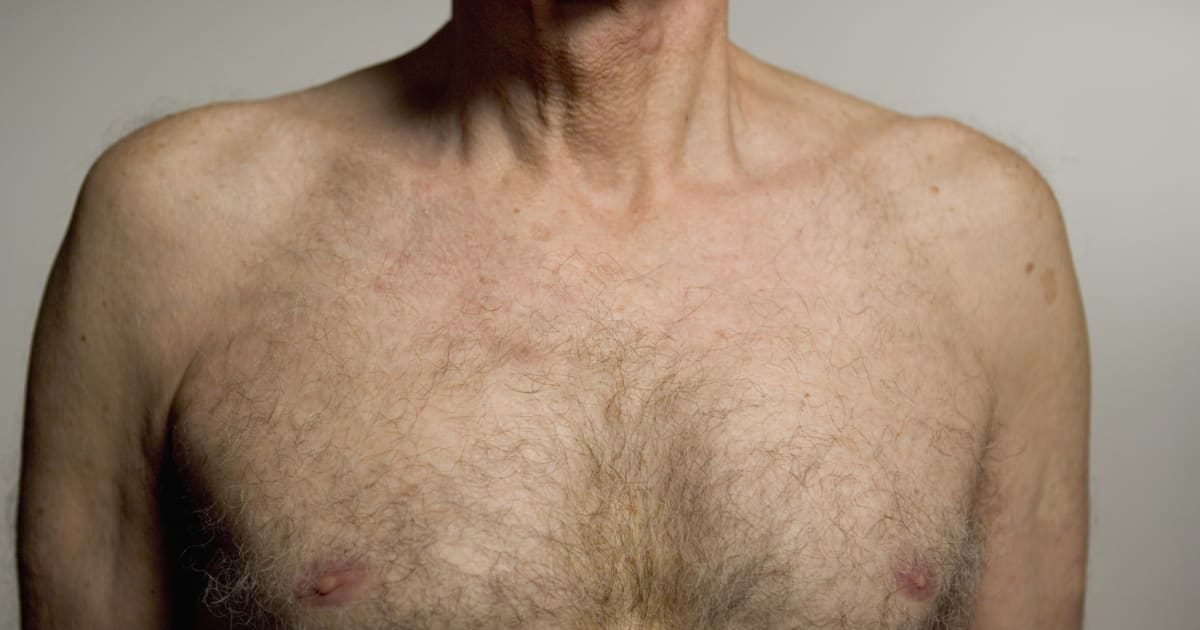 Male Breast Cancer: How To Spot The Symptoms Plus What Happens After ...