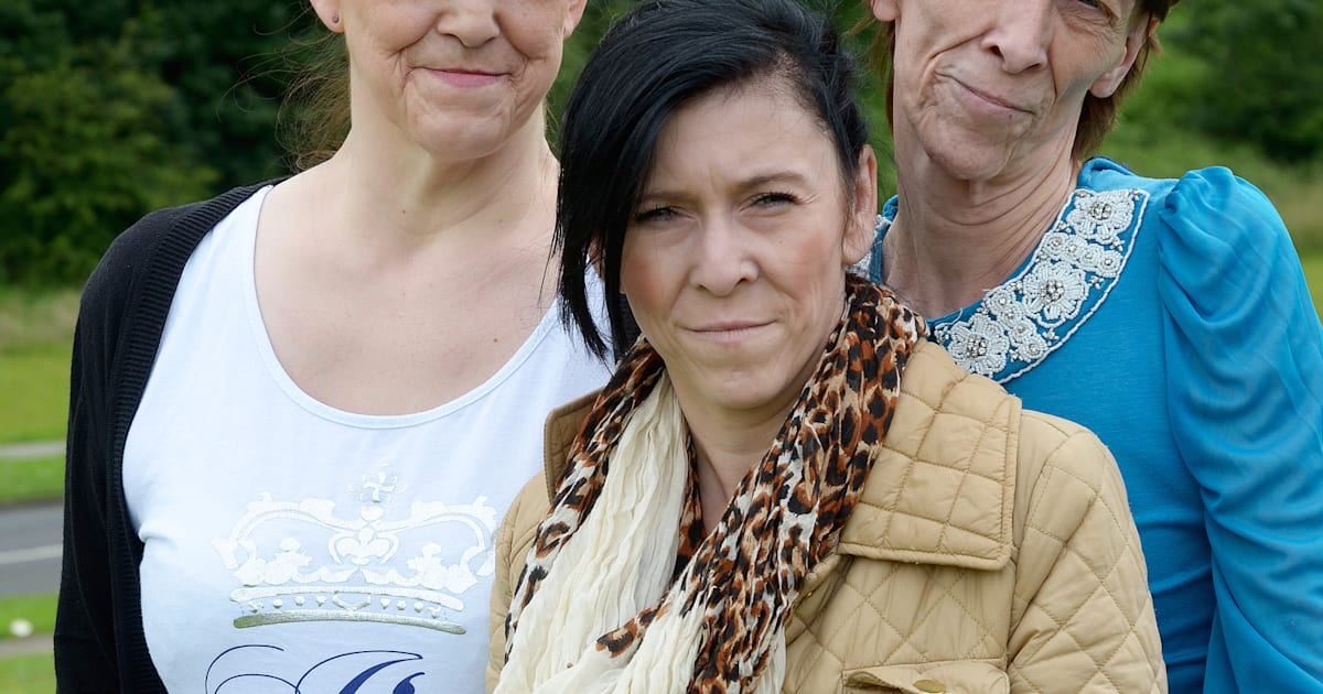 Mother & Two Daughters Suffer Lipodystropy Ageing Disease ...