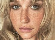 Cette photo de Kesha avec ses taches de rousseur a mis tout le monde
