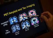 Los científicos ven posible curar el alzhéimer en un plazo de 5 a 10