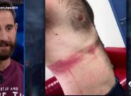 Dani Rovira muestra en 'El Hormiguero' las heridas que sufrió en el rodaje de
