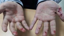 시민을 감동시킨 한 경찰관의 피묻은