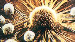 갑상선암 과다진단 우려 의사들까지