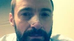 휴 잭맨, 또다시 피부암 치료를