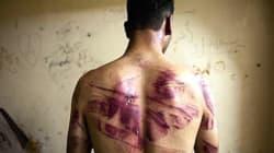 La torture persiste en Afrique du Nord et