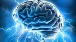 Avoir un gros cerveau ne serait pas forcément une bonne