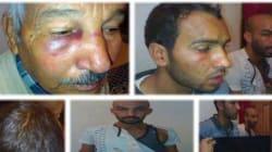 Dérapage policier à Laghouat: Un père et ses deux fils disent avoir été violemment