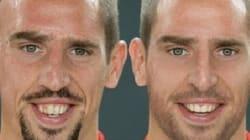 A quoi ressemblerait Franck Ribery sans ses