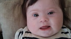 두 팔, 두 다리 그리고 추가 염색체가 하나 더 있는 4개월 된 내 딸