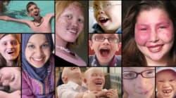 Ένα ντοκιμαντέρ για την ομορφιά των παιδιών που πάσχουν από γενετικές
