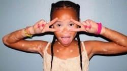 백반증 걸린 10살 모델이 주는 자기긍정의