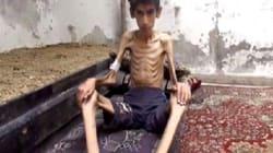 시리아의 한 마을에서 정부군 봉쇄로 4만 명이 죽어가고