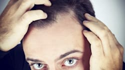 Going Bald From The Sun and Other Hair Loss